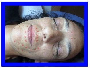 acupuntura facial con paciente