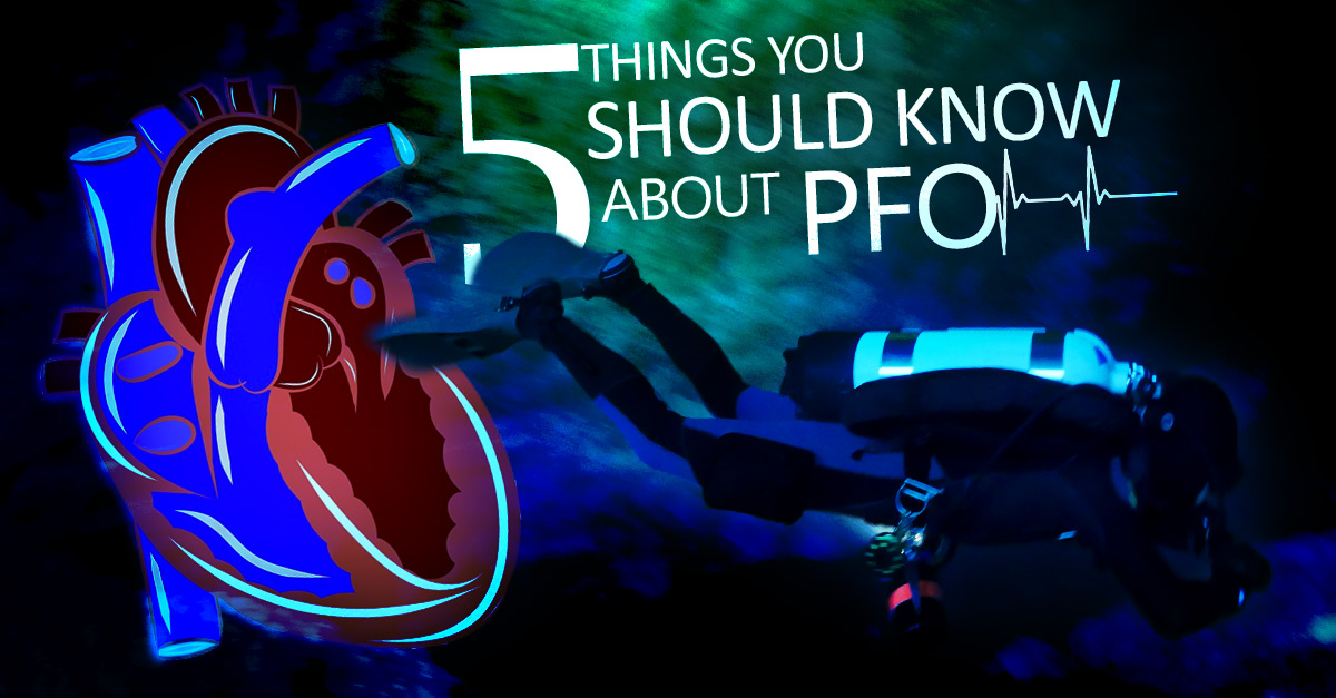FIVE THINGS YOU SHOULD KNOW ABOUT PFO