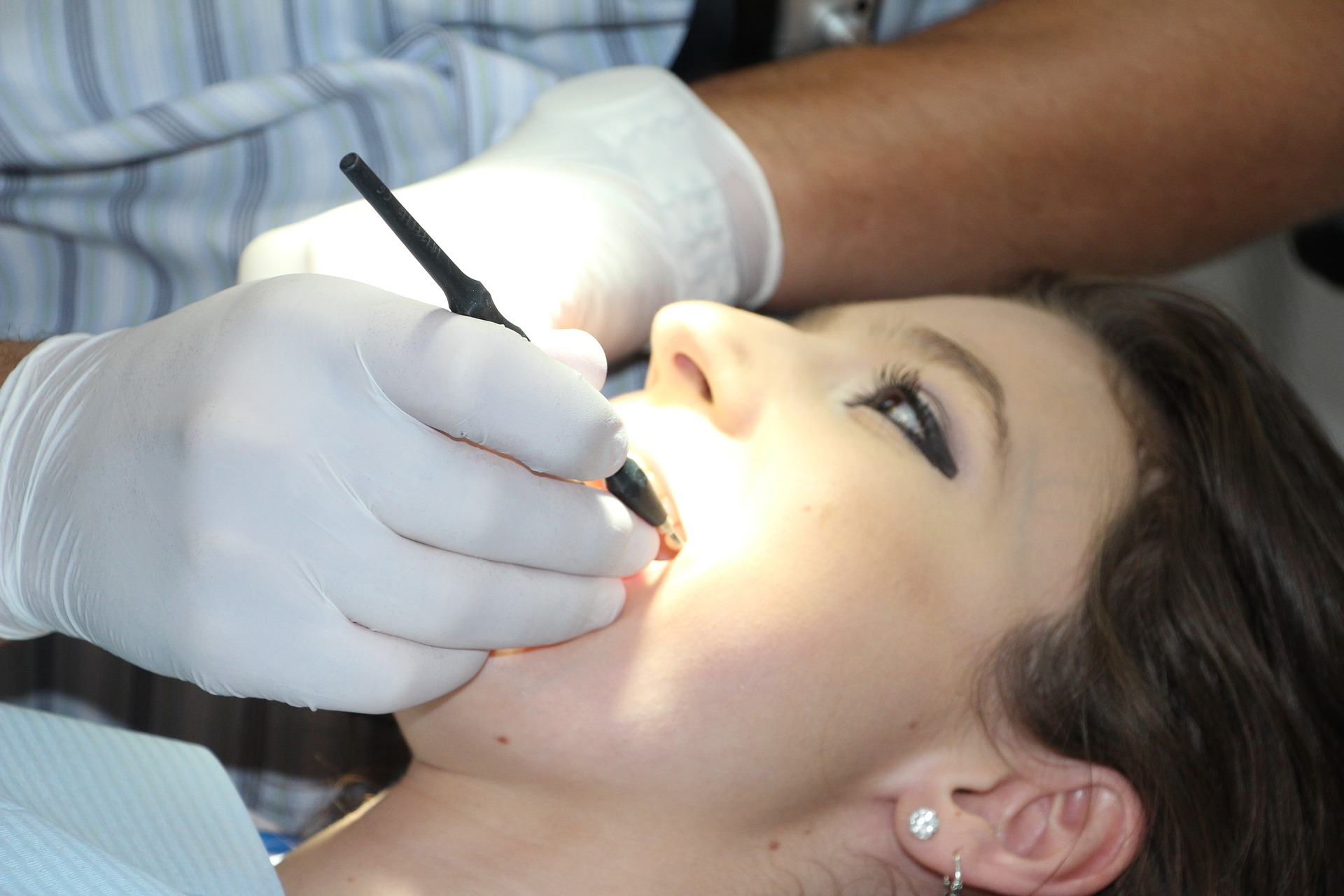 ¿Cómo solucionar una caries dental?