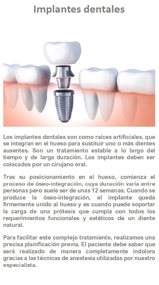 Implantes dentalesjpg