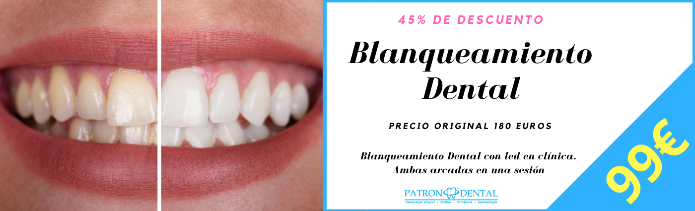 cupon blanqueamiento dental