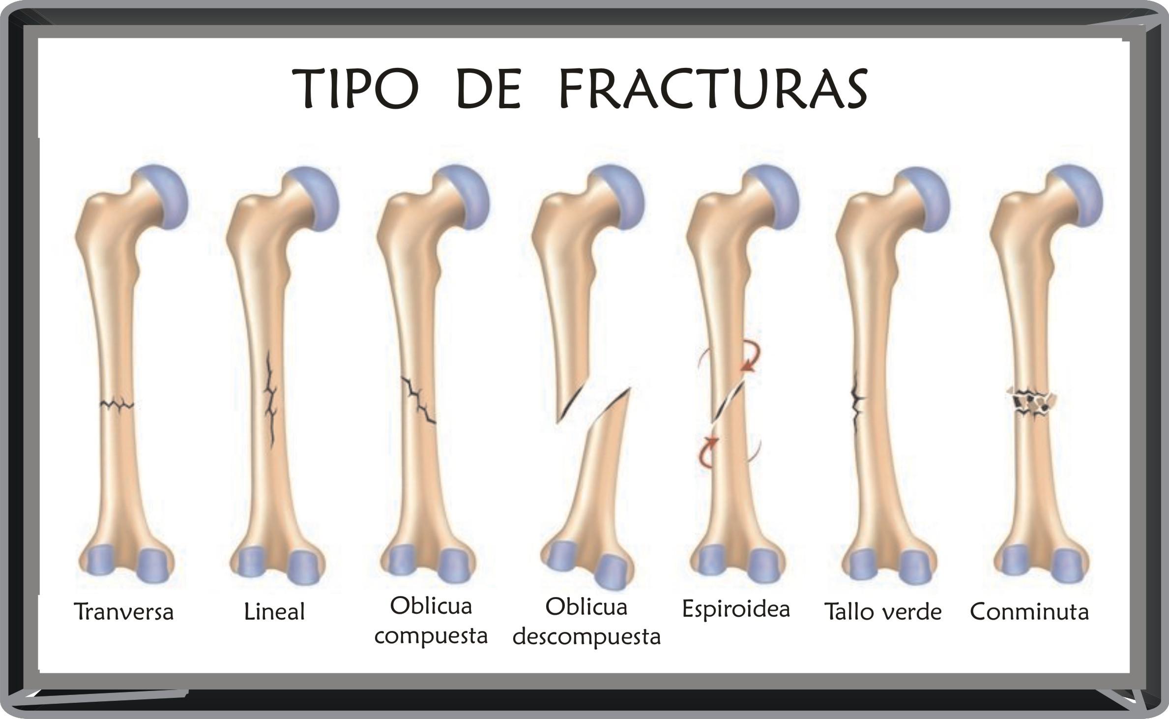 FISIOTERAPIA TRAUMATOLOGICA CORUA FRACTURAS WEBjpg